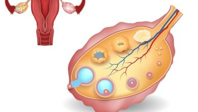 9 common causes of anovulation
